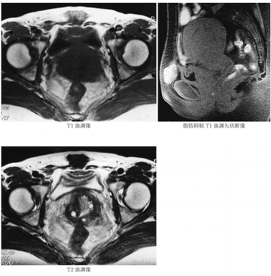 heterotopic endometriosis