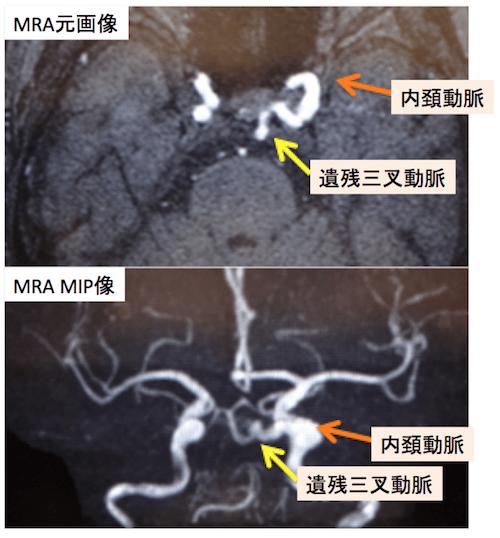 persistent trigeminal artery1