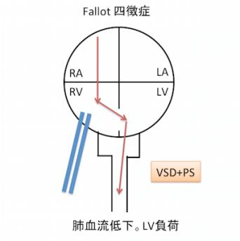 TETRALOGY OF FALLOT1