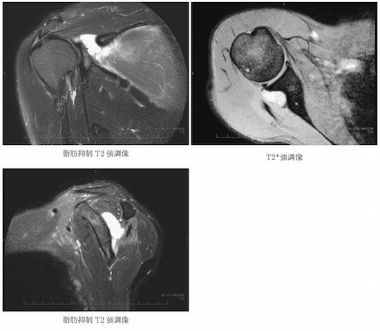 posterior paraglenoid labral cysts