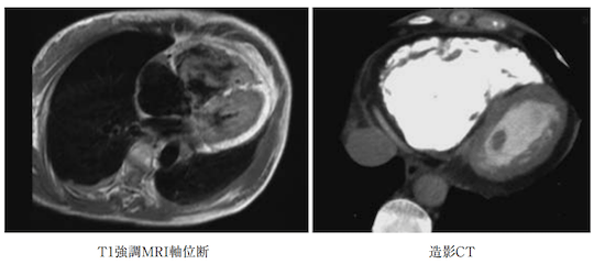 arrhythmogenic right ventricular cardiomyopathy1