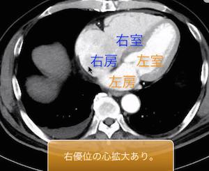 heart failure1