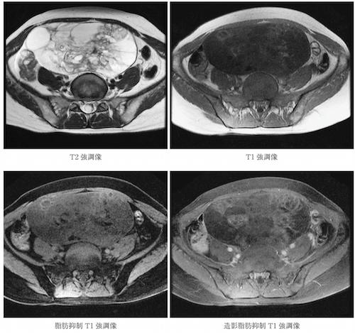 胎児 用 奇形 種 26歳の女性脳腫瘍摘出手術で頭から胎児