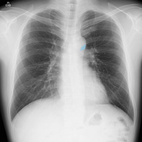 aortopulmonary-window