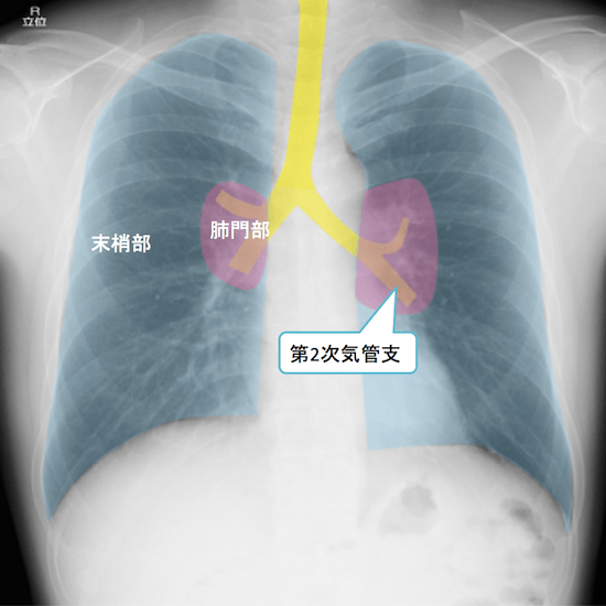 normal anatomy of chest Xray10