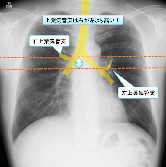 normal anatomy of chest Xray11
