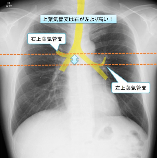 normal anatomy of chest Xray11