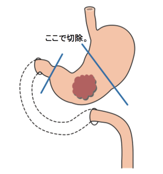 Distal gastrectomy