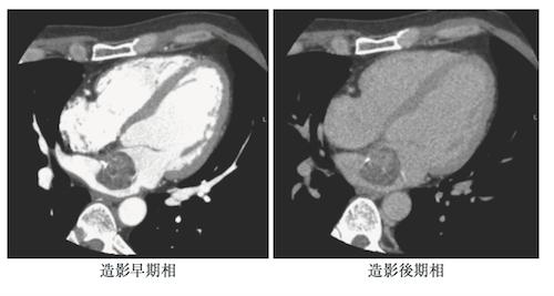 left-atrial-myxoma