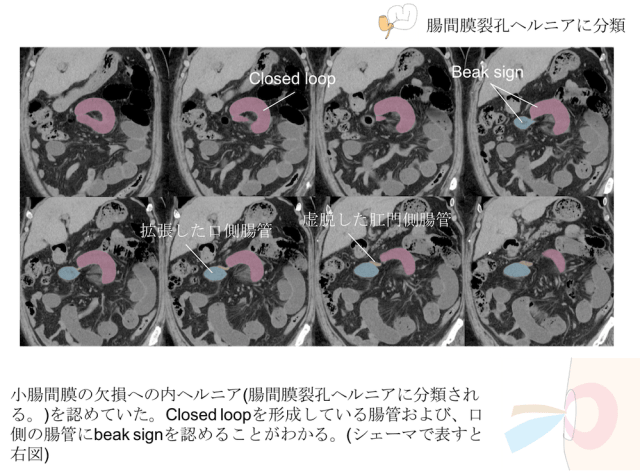 closed-loop-ct-findings3