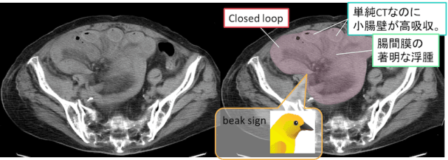 closed-loop-ct-findings6