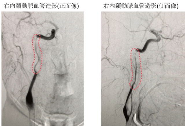 dissection of internal cerebral artery dissection