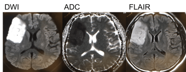 internal carotid artery dissection MRI findings1