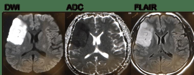 internal carotid artery dissection MRI findings1