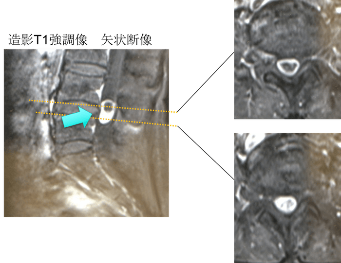 schwannoma mri findigs3