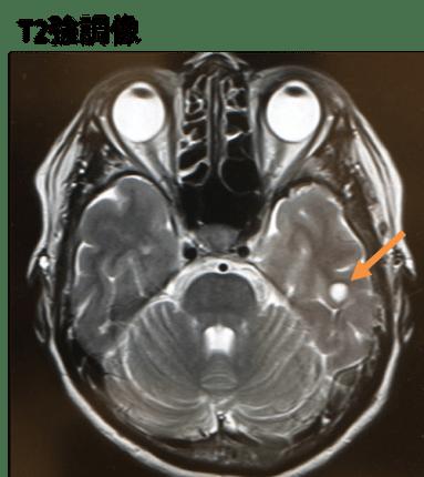 neuroglial cyst mri findings1