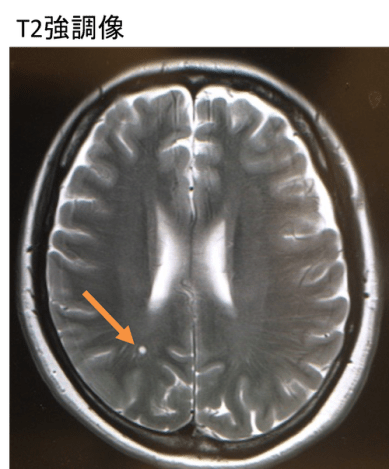 neuroglial cyst mri findings5