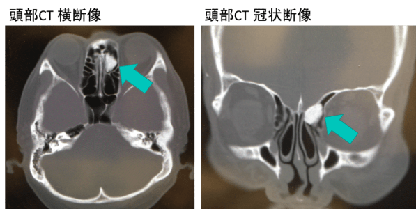 副鼻腔骨腫(osteoma of paranasal sinus)のCT画像