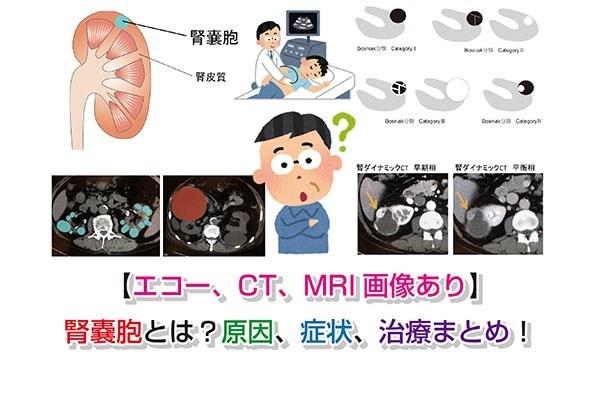 嚢胞 原因 肝