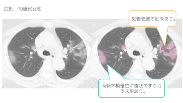 ウイルス肺炎
