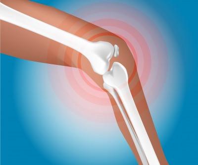 膝 痛み 腫れ 違和感