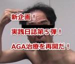 新企画!実践日誌第5弾!AGA治療を再開だ!!