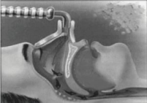 Vista-lateral-seccionada-paciente-con-mascarilla