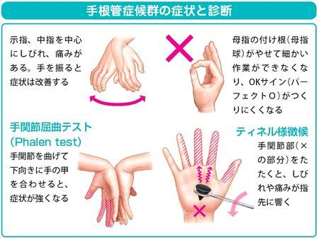 手根管症候群の手術