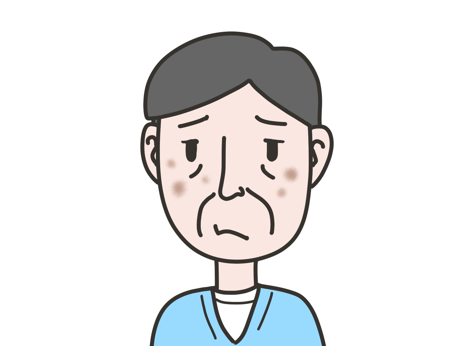 シミそばかす 男性 老人性色素斑