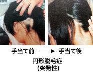 円形脱毛症(突発性)手当て前と手当て後