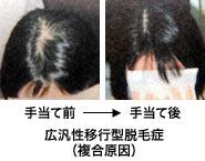 広汎性移行型脱毛症(複合原因)手当て前と手当て後