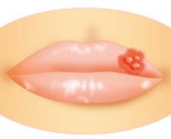 口唇ヘルペス,口内炎,違い,できもの,子供,耳鼻咽喉科