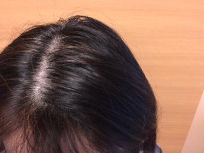 薄毛の悩み 女性