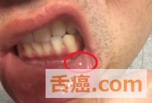 噛んだことが原因の口内炎