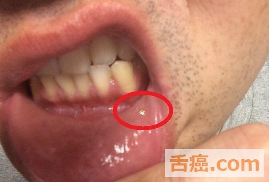 癌 初期 写真 舌 症状