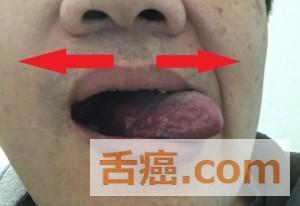 舌癌手術後の舌のリハビリ
