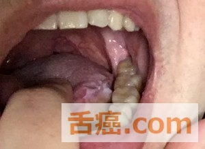舌癌の手術跡は舌がガタガタ