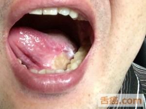 抜糸後の舌