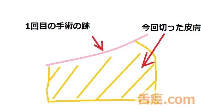 植皮の範囲