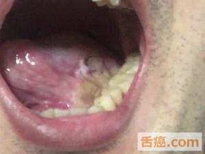 舌癌手術後の舌の様子