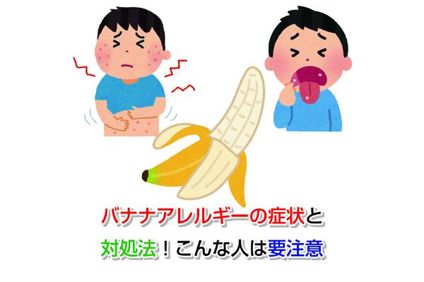 banana Allergy Eye-catching image