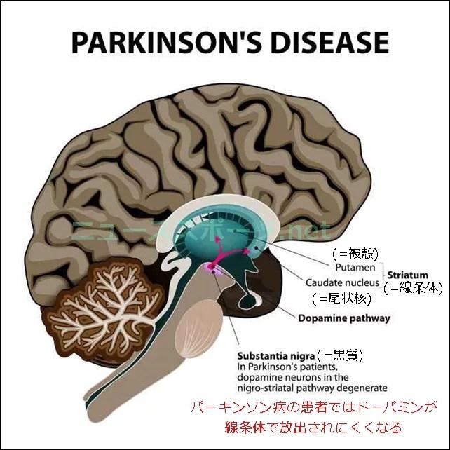 パーキンソン病の芸能人や有名人は?初期症状や原因、治療もご紹介2