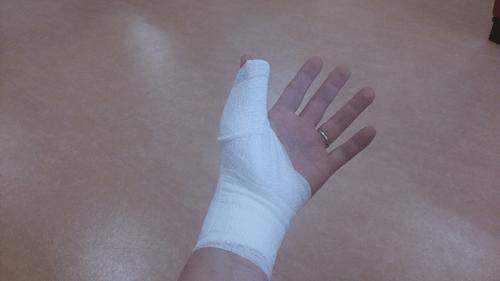 【コラム】片手だけで大型端末を使うとこうなる~左手親指の亜脱臼(寸前)