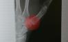 caution-thumb-pain04
