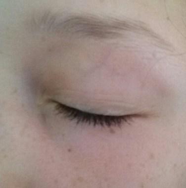 Auge zu Woche 1