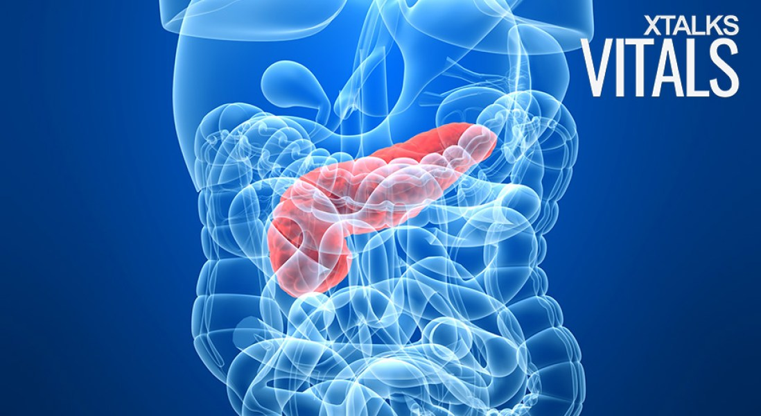 Diabetes Drug Metformin Could Inhibit Progression of Pancreatic Cancer