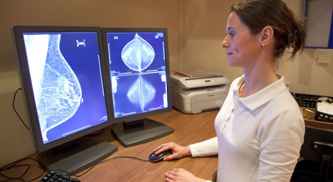 Obese Women Could Lower Breast Cancer Risk By Omega-3 Supplementation