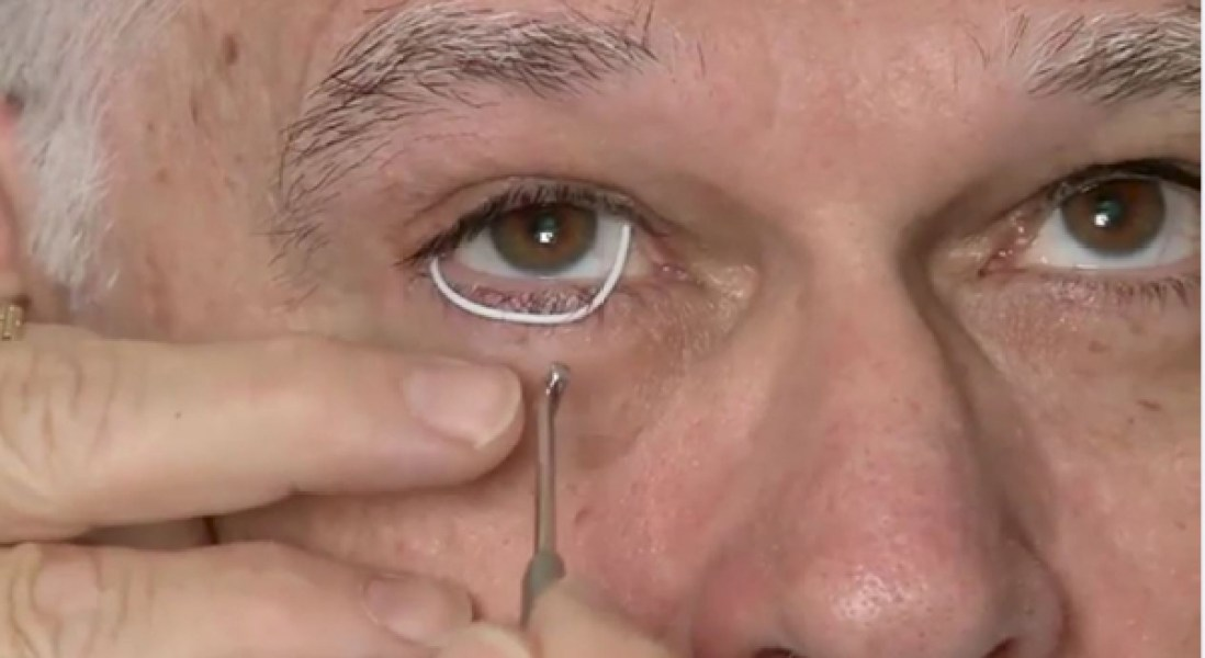 Slow-Release Drug Delivery Device Could Offer New Treatment Option For Glaucoma Patients