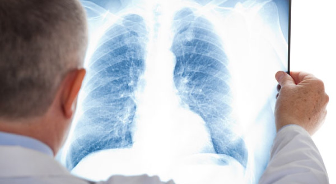 FDA Approves First Anti-PDL1 Cancer Immunotherapy for Metastatic Lung Cancer
