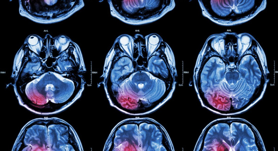 Could Electromagnetic Treatment Reverse Memory Loss in Alzheimer's Disease Patients?